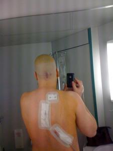 Jelle nam met zijn gsm deze foto - na de operatie